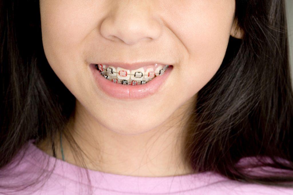 Appareil dentaire céramique en haut et métal en bas