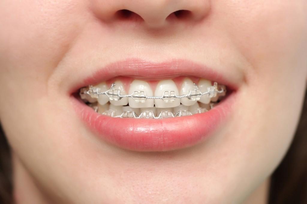 Un appareil dentaire avec des bagues céramique.