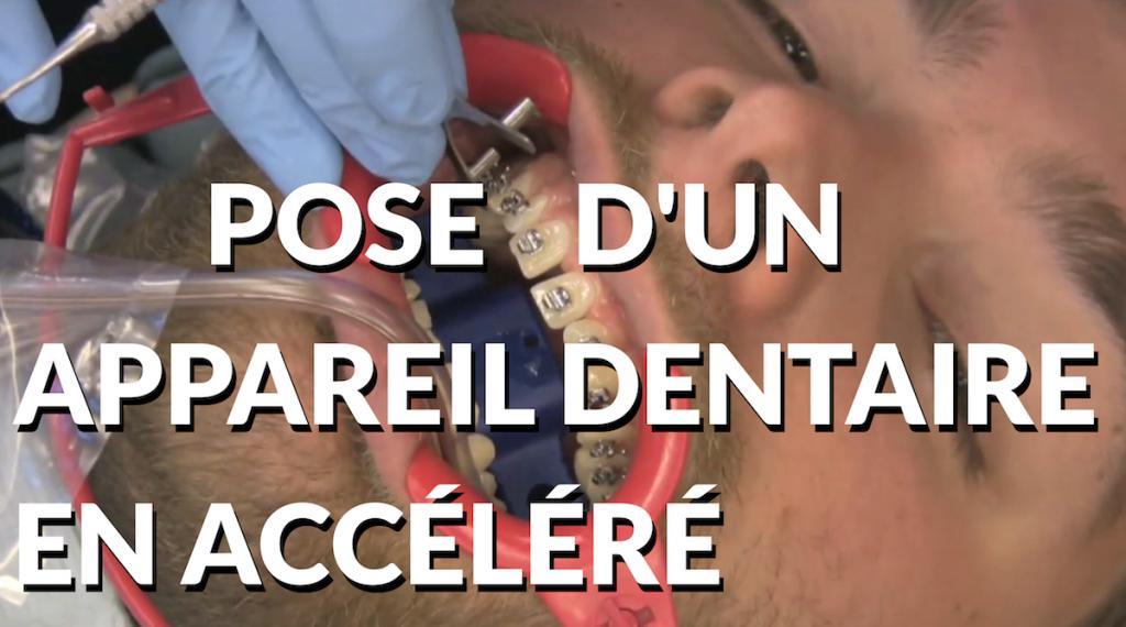 Pose d'un appareil dentaire en accéléré Miniature Youtube
