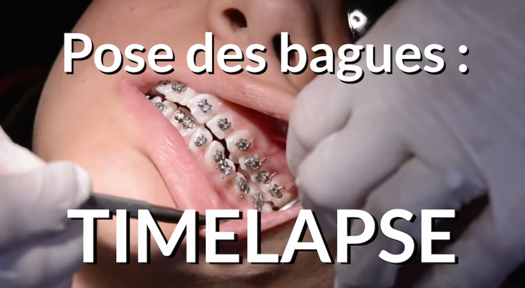 Timelapse pose appareil dentaire Miniature YouTube