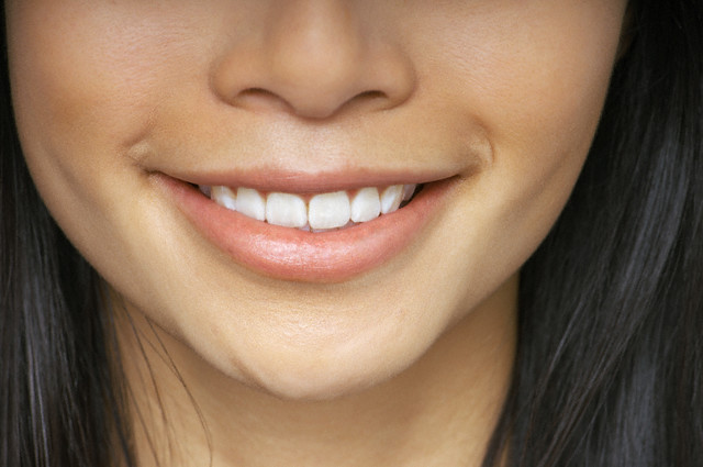 Un sourire étincellent même pendant le traitement orthodontique.