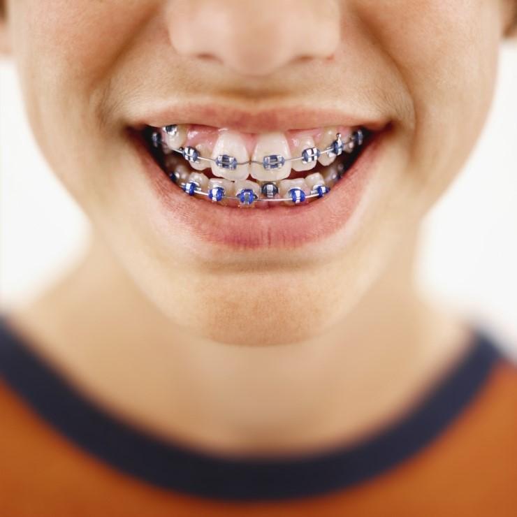 Un appareil dentaire peu quelques fois être douloureux.