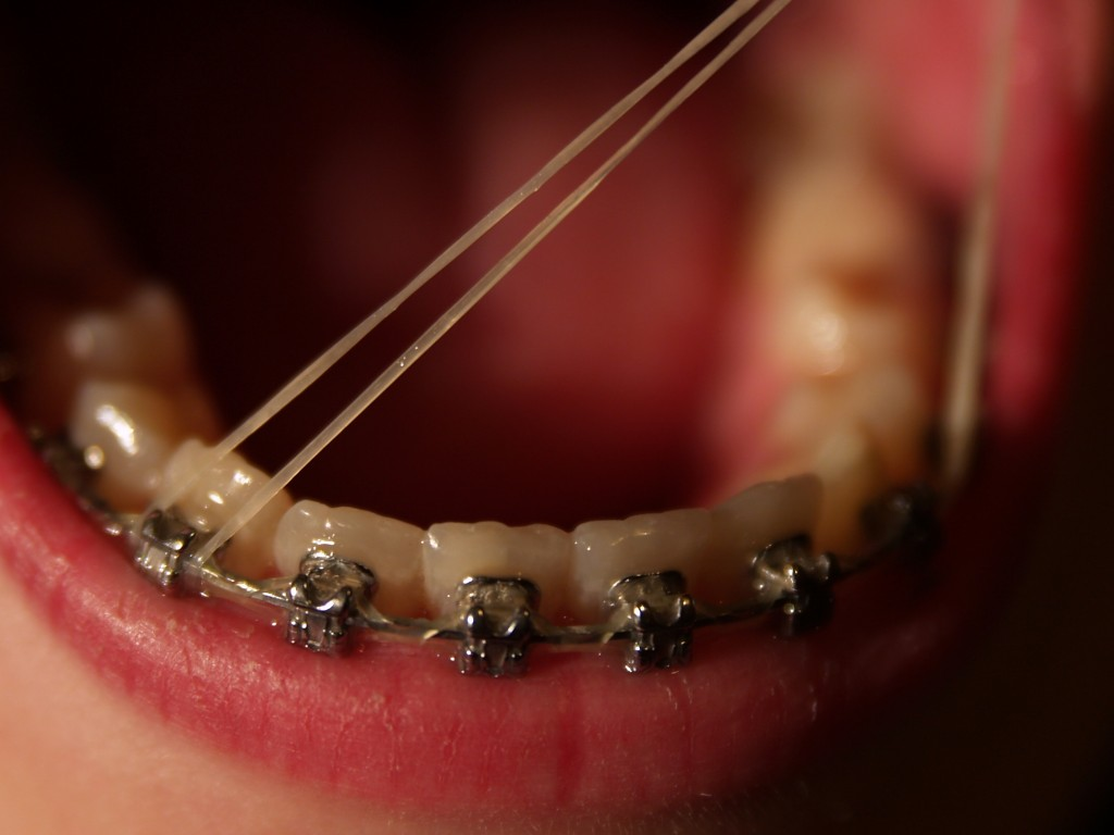 Elastiques Appareil Dentaire