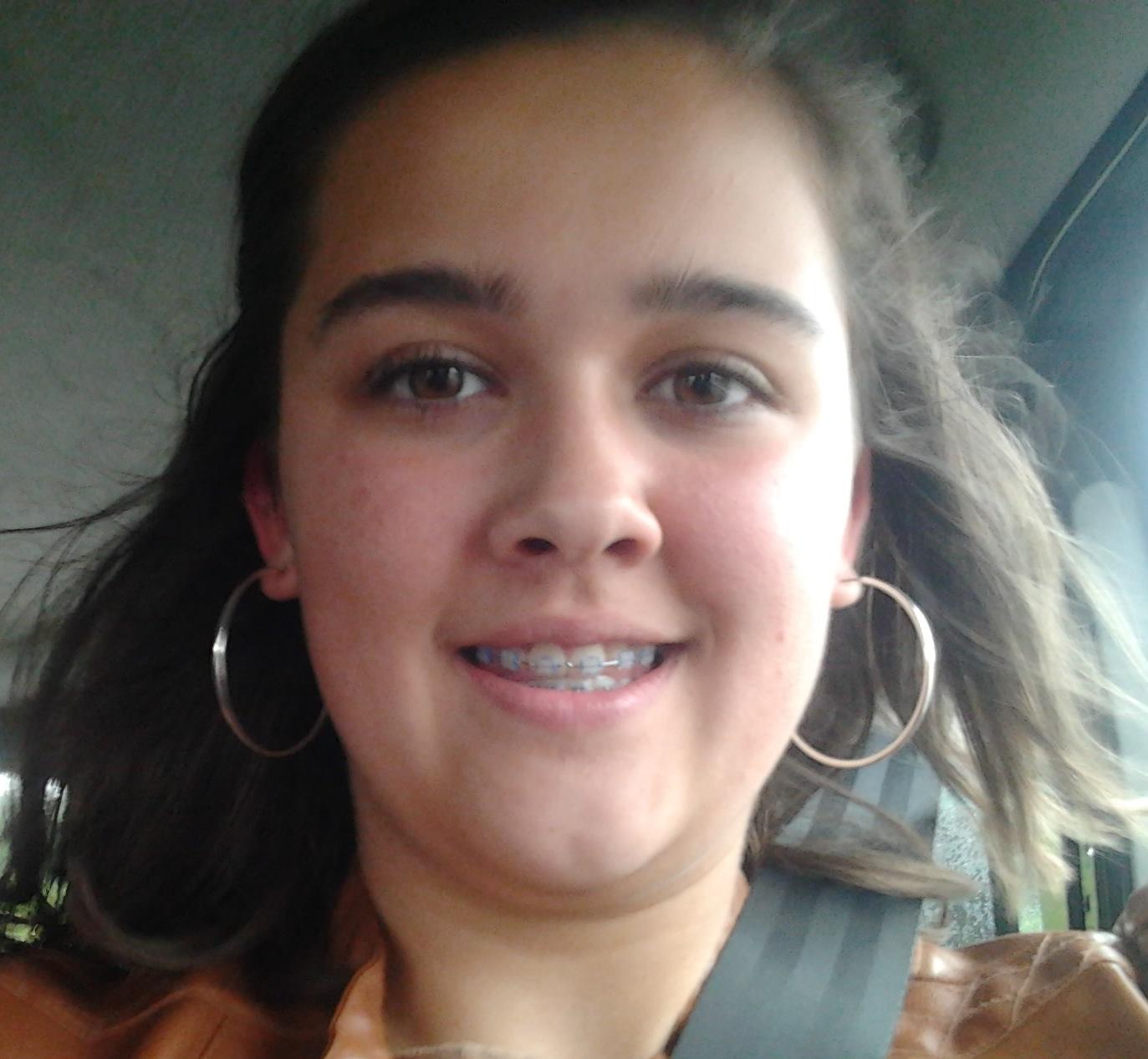 Marion Avec son appareil dentaire.