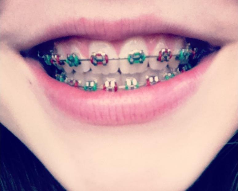 Les bague des dents les couleurs
