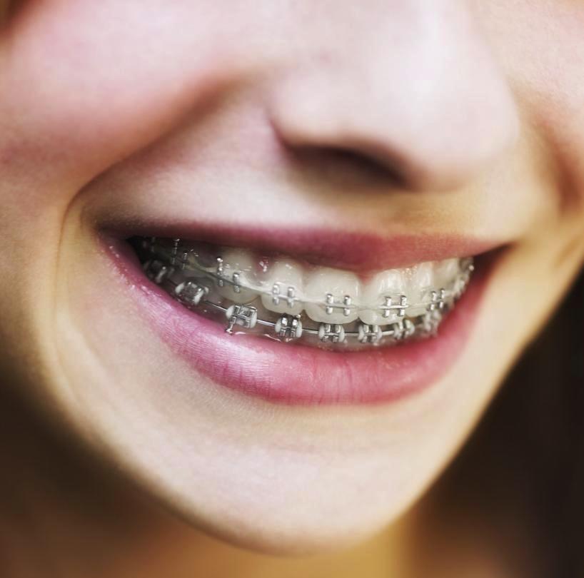 Un appareil dentaire avec lequel on se sent bien !