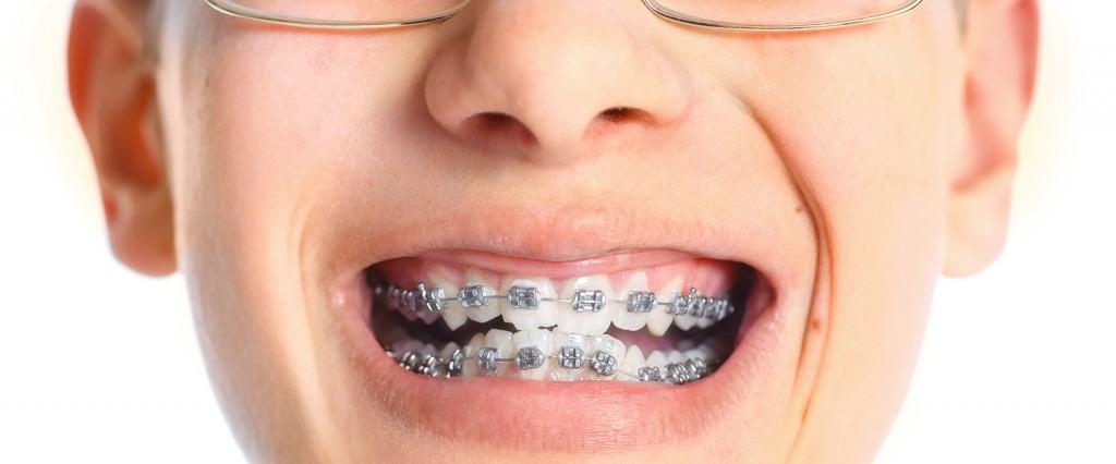 Appareil dentaire classique avec des bagues en métal.