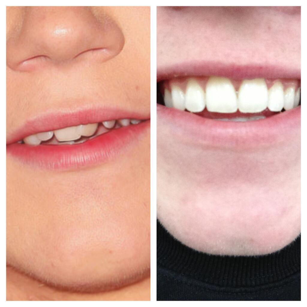 Niall Horan Appareil dentaire avant après