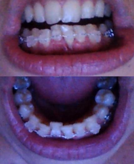 Témoignage Appareil Dentaire Manon 44eme jour