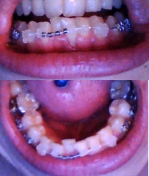 Témoignage Appareil Dentaire Manon 26eme jour