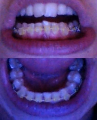 Témoignage Appareil Dentaire Manon 75eme jour