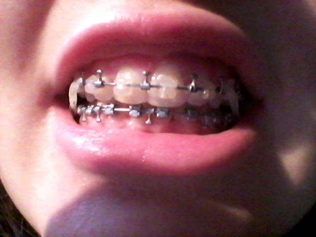 Témoignage Appareil dentaire Mathilde