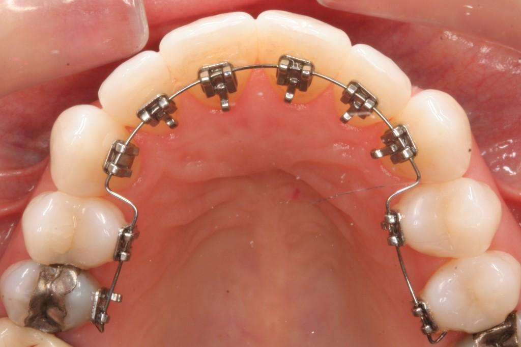 Un Appareil dentaire lingual