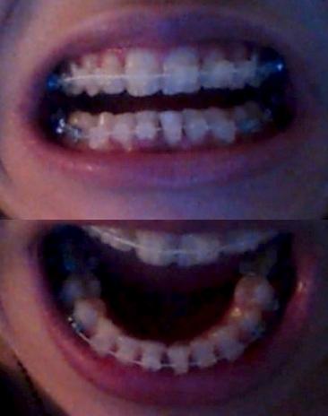 Bague pour aligner les dents
