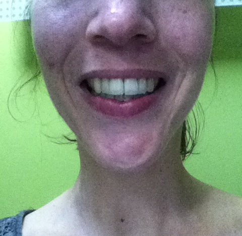 L'appareil lingual est invisible quand Nina sourit