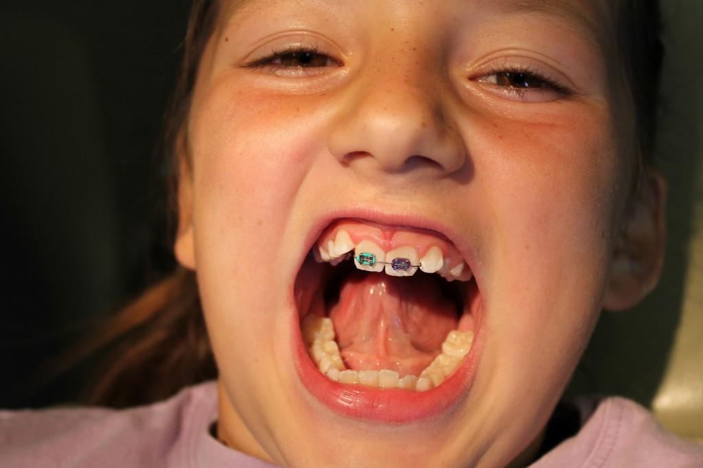 Des dents de travers sont une malocclusion.