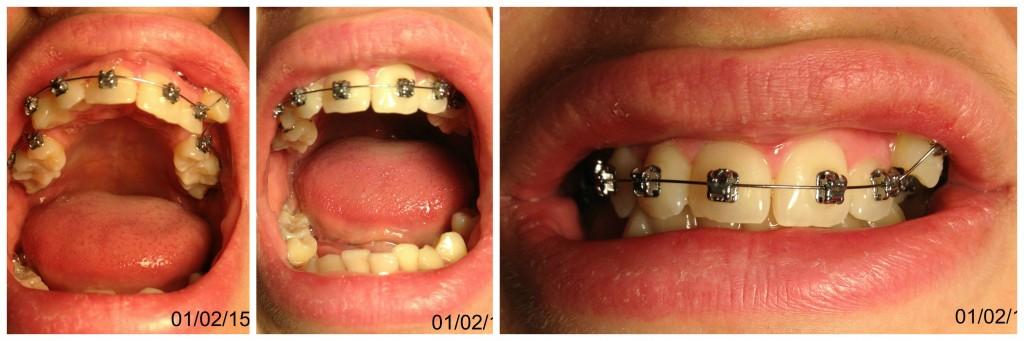 Mélanie et son appareil dentaire