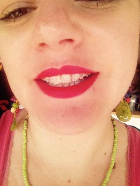 Cécile et son appareil dentaire