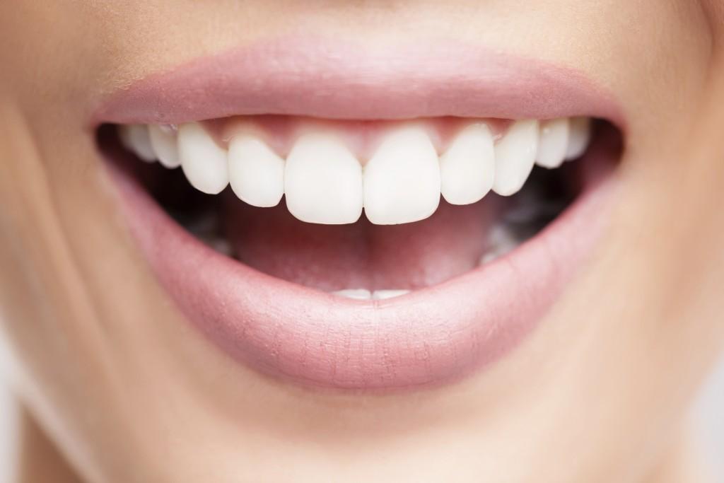 Facette dentaire sur un sourire