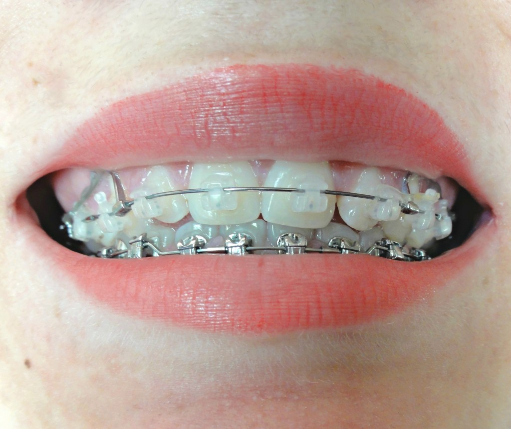 orthodontie adulte