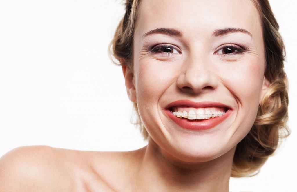Appareil Dentaire Céramique Adulte