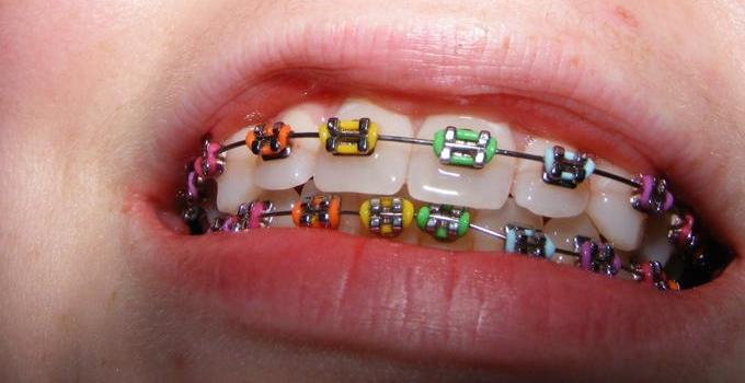 Appareil Dentaire couleur élastique