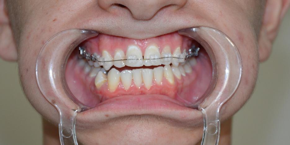 Témoignage Appareil Dentaire Mutlu