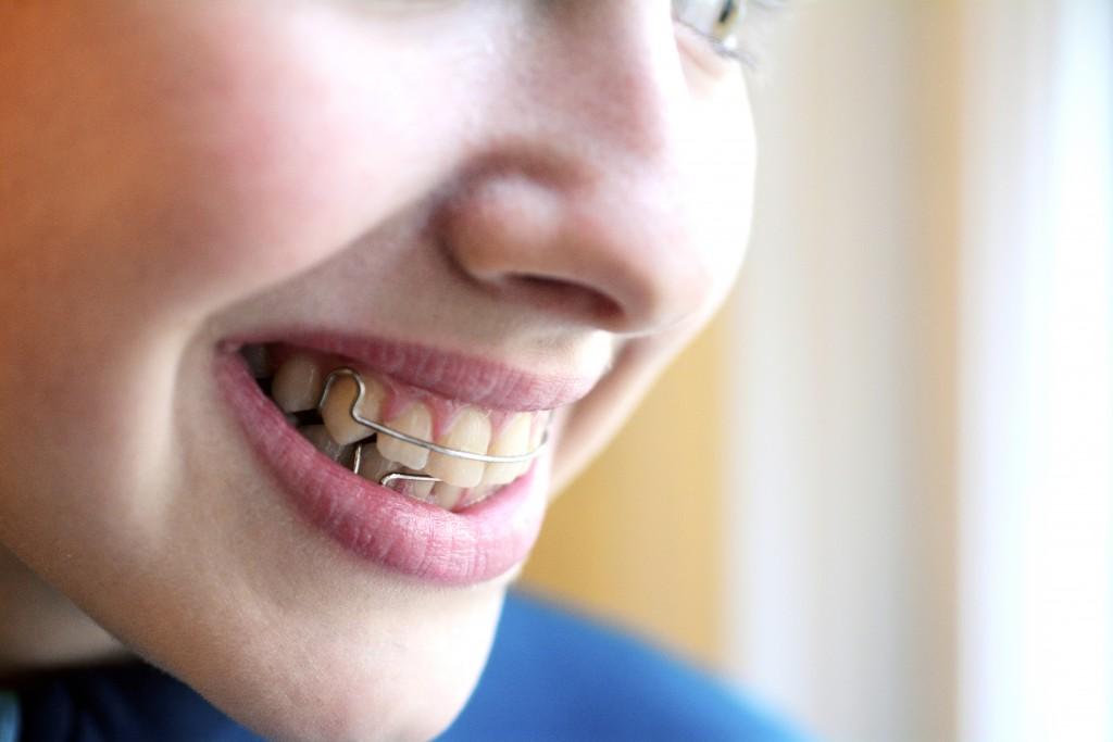 Contention Faux Palais Appareil Dentaire