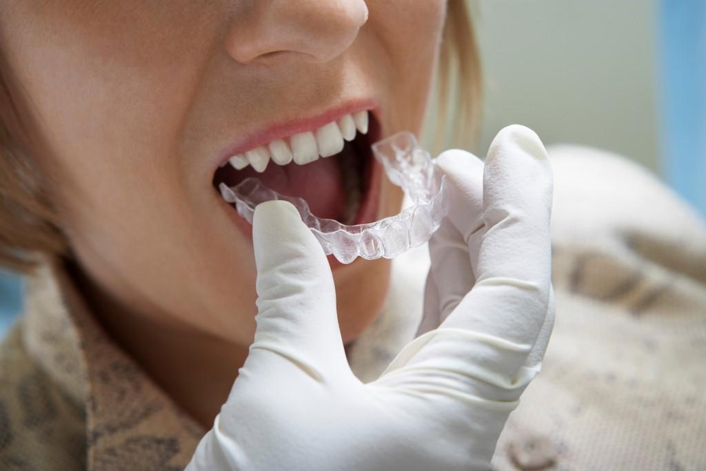 Appareil Dentaire Invisalign transparent