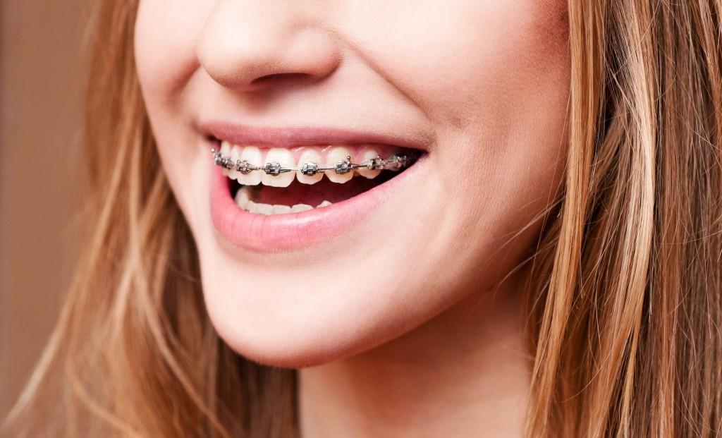 Appareil Dentaire bague en métal adulte