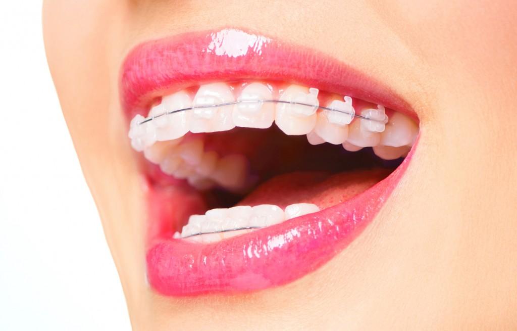Appareil Dentaire bagues céramique.jpg
