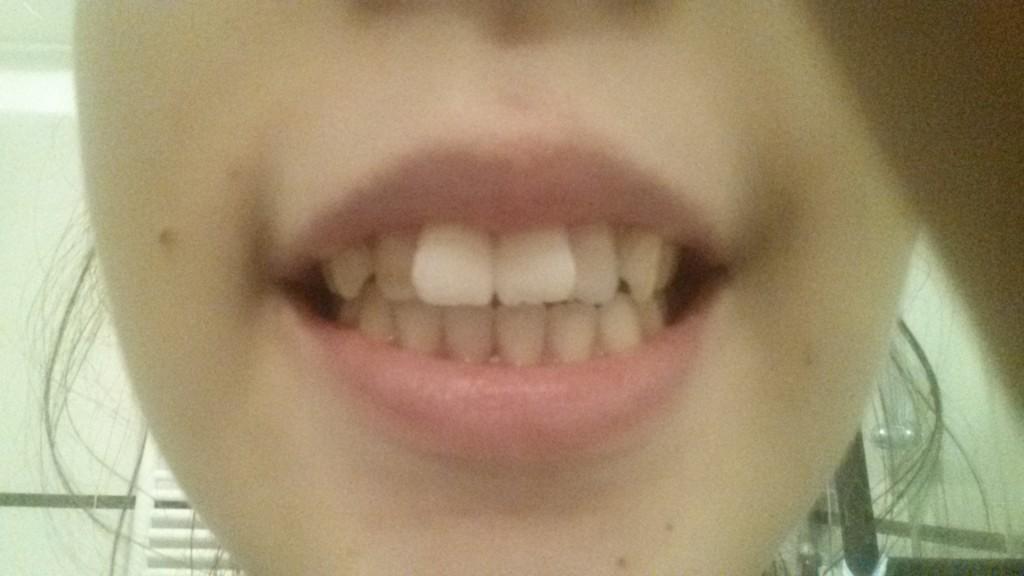 Témoignage Appareil Dentaire Estelle
