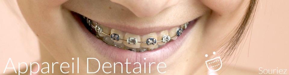 Appareil dentaire tout savoir sur les appareils d for Interieur de la bouche blanche
